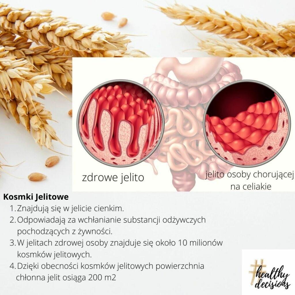 Kosmki jelitowe a gluten